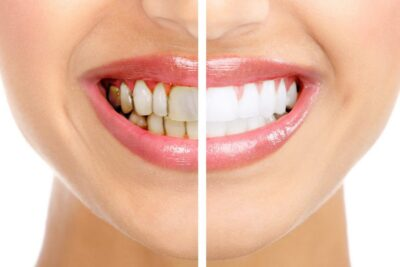 Tẩy trắng răng quang hoạt hóa là gì, có tốt không, chi phí bao nhiêu