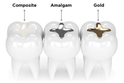 Review trám răng composite có bền không, ưu nhược điểm, chi phí
