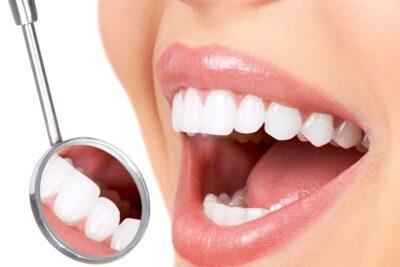 Răng cửa bị sâu có trám được không, có đau không, lưu ý quan trọng