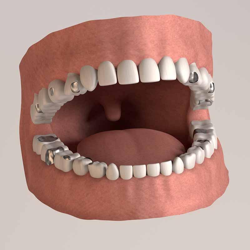 Hình ảnh mô phỏng trám răng thẩm mỹ