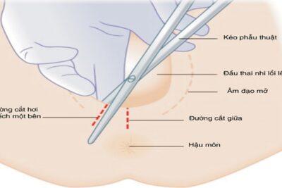 Sinh thường bị rạch tầng sinh môn như thế nào, có để lại sẹo không