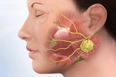 Viêm khớp thái dương hàm nổi hạch là gì, nguyên nhân, cách điều trị