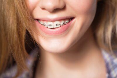 Niềng răng giai đoạn nào đau nhất, có làm răng yếu, chọn loại nào tốt