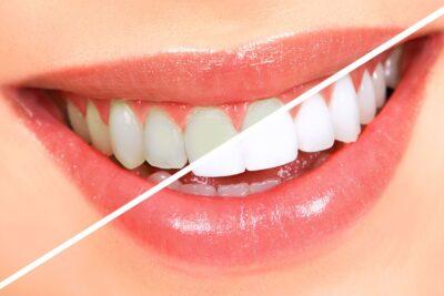 6 tiêu chí so sánh răng sứ Emax và Cercon về chất lượng và giá thành