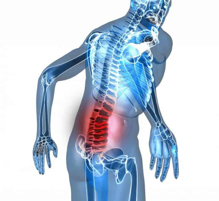 Các bệnh liên quan đến cột sống là một trong những nguyên nhân thường gặp nhất dẫn đến chứng đau lưng tê bì chân tay