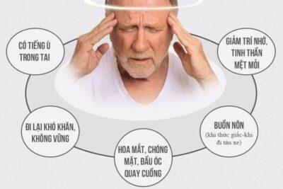 Hội chứng rối loạn tiền đình là gì, có nguy hiểm không, dấu hiệu