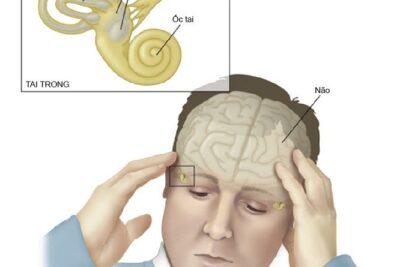 Hội chứng rối loạn tiền đình ốc tai: Nguyên nhân, Phương pháp điều trị