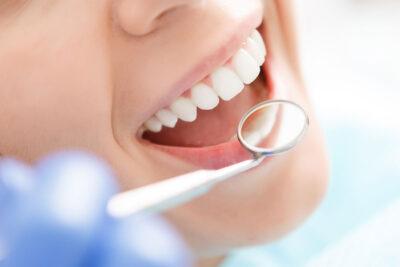 2 cách tẩy trắng răng tại nha khoa uy tín an toàn hiệu quả hiện nay