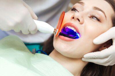 Lưu ý sau khi tẩy trắng răng: kiêng gì, ăn gì, có được đánh răng không