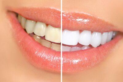 Tẩy trắng răng được bao lâu 1 lần, đau không, cách chăm sóc hiệu quả