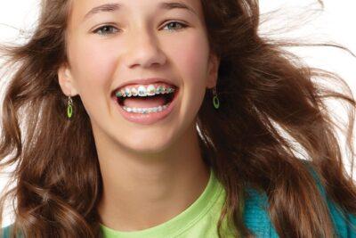 Niềng răng mắc cài kim loại là gì, mất bao lâu, quy trình, chi phí