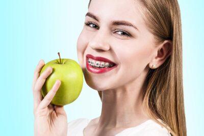 Niềng răng mắc cài tự buộc là gì, ưu nhược điểm, chi phí, các lưu ý
