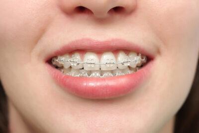 Niềng răng mắc cài sứ dây trong tốt không, ưu nhược điểm, ai nên làm