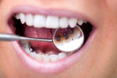 Niềng răng mắc cài mặt trong hiệu quả không, chi phí, ưu nhược điểm