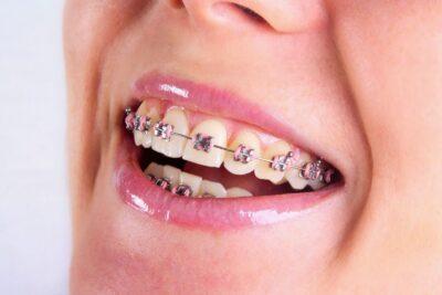 Kinh nghiệm niềng răng thưa: Quy trình, Chi phí, Thời gian làm, Lưu ý