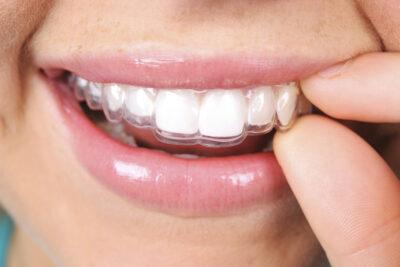 Niềng răng trong suốt có hiệu quả không, chi phí, ưu nhược điểm