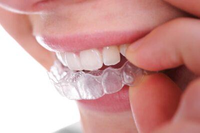 Niềng răng không mắc cài 3D Clear là gì, hiệu quả không, chi phí