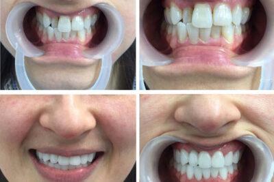 Ưu nhược điểm của bọc răng sứ thẩm mỹ và các tác dụng tích cực