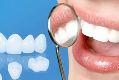Công nghệ bọc răng sứ không mài là gì, giá bao nhiêu, khi nào nên làm