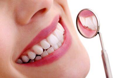 Sâu răng có nguy hiểm không? Cách điều trị và ngăn ngừa