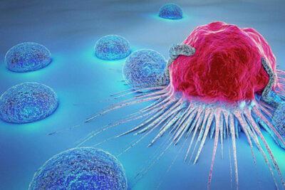 Top 5 loại thực phẩm làm tăng nguy cơ bị ung thư